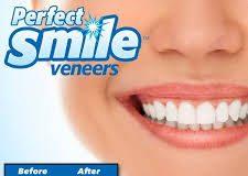 Perfect Smile Veneers - ราคา - pantip - lazada- ราคา เท่า ไหร่ - ของ แท้ - ดี ไหม